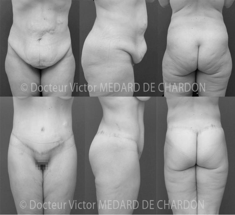 Body lift: addominoplastica ad alta tensione, lipoaspirazione dei fianchi e della culotte de cheval, lifting dei glutei