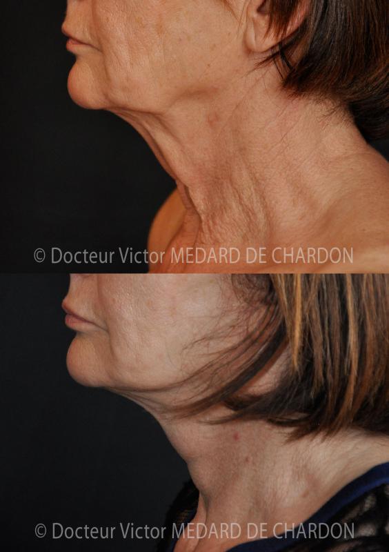 Cedimenti contorni del viso e del collo