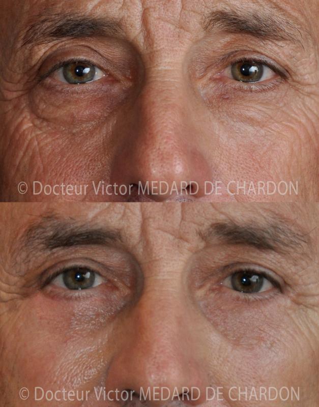 Chirurgia delle palpebre per borse di grasso e occhiaie incavate in un uomo