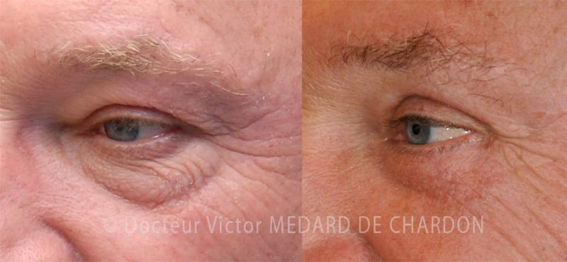 Chirurgia delle palpebre per borse sotto gli occhi, occhiaie incavate e dermatocalasi delle palpebre