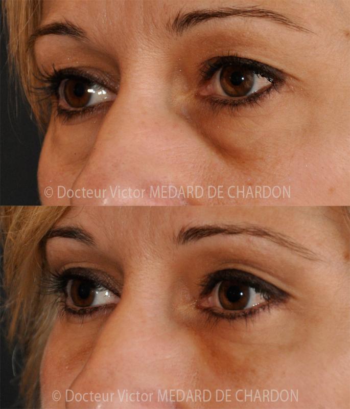 Chirurgia delle palpebre per borse sotto gli occhi + occhiaie incavate e pigmentate
