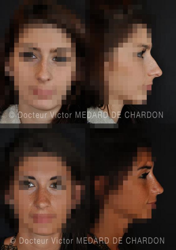 Chirurgia estetica del naso