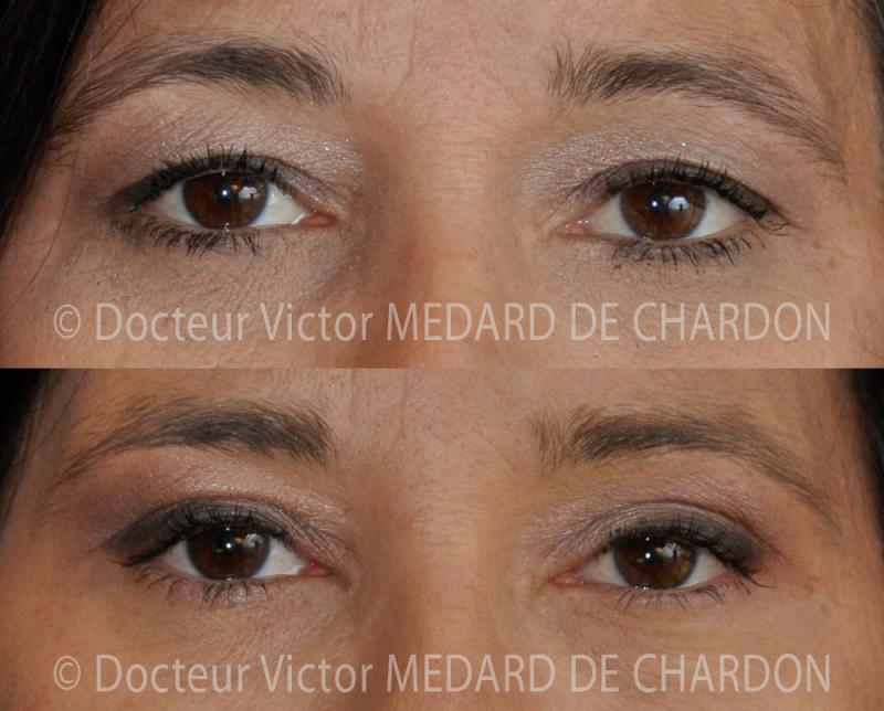 Chirurgia estetica delle palpebre superiori e iniezione di Botox