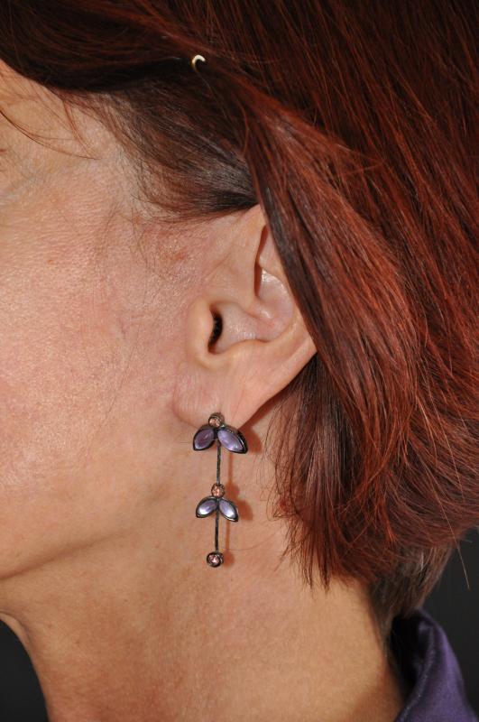 Cicatrici di lifting cervico-facciale
