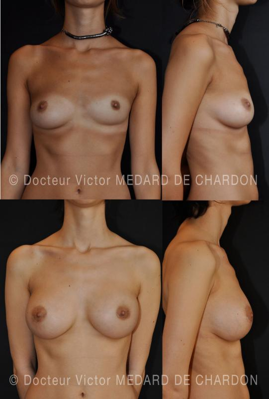 Composito aumento del seno sulla asimmetria toracica e della mammella