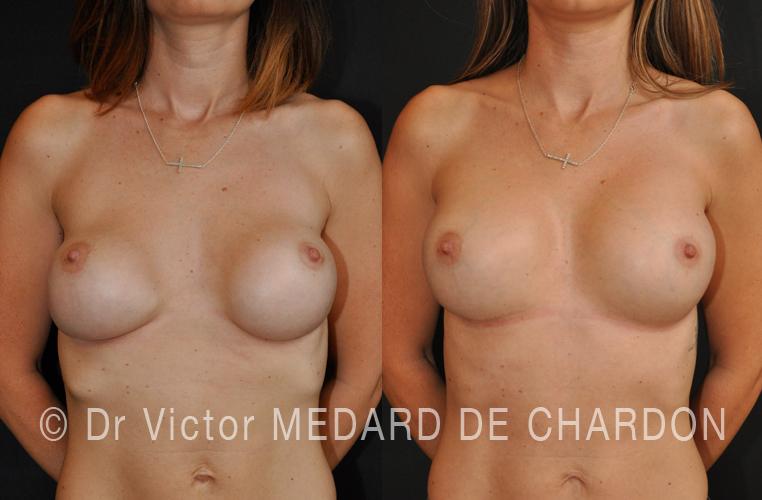 Corretto un malposizionamento basso e il seno a parte dopo protesi mammarie