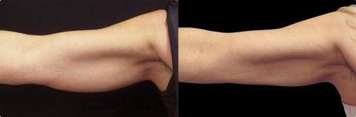 Criolipolisi delle braccia con CoolSculpting