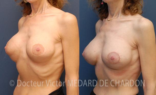 Doppia scanalatura dopo l'aumento del seno con protesi