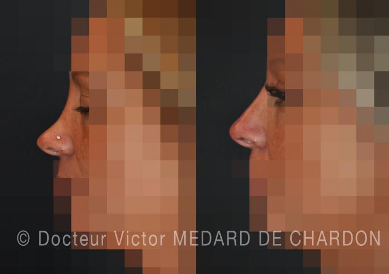 Ensellure naso dopo rinoplastica: il naso troppo scavati