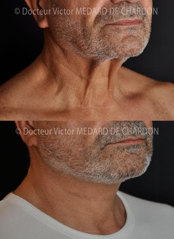 Facelift e del collo