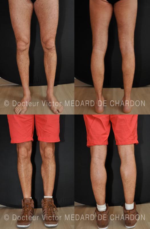 Gambe e polpacci sottili