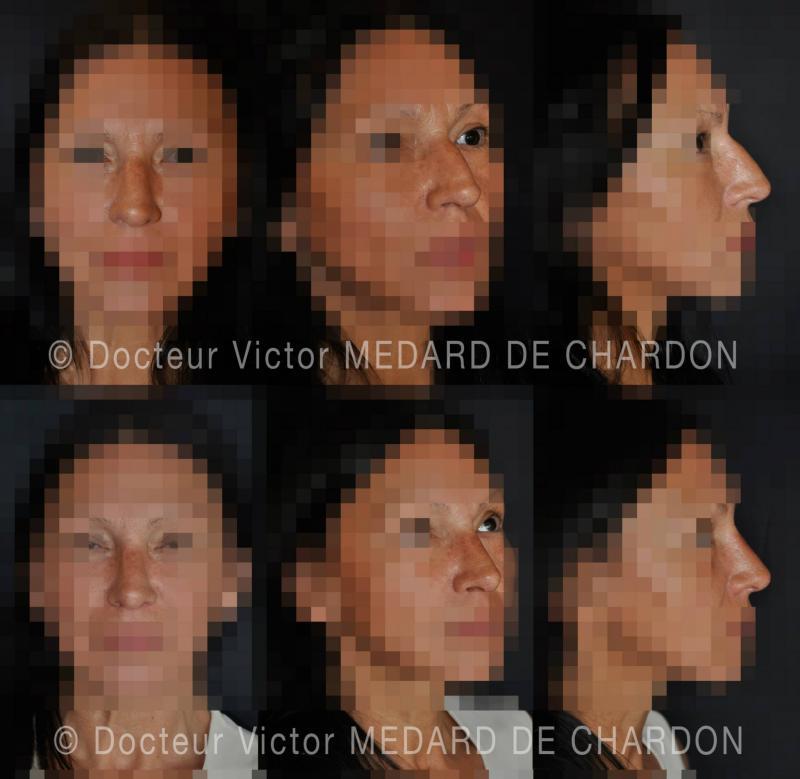 Interventi di chirurgia estetica del naso naturale per correggere un urto