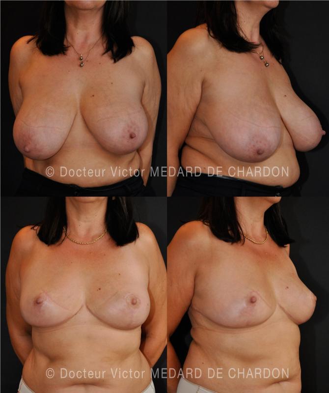 Ipertrofia mammaria e l'asimmetria