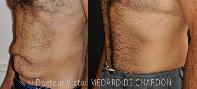 La pelle della pancia sciolto con il grasso in eccesso