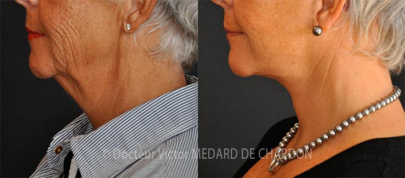 Lifting cervico-facciale (lifting del viso e del collo) con lipoaspirazione del collo (doppio mento)