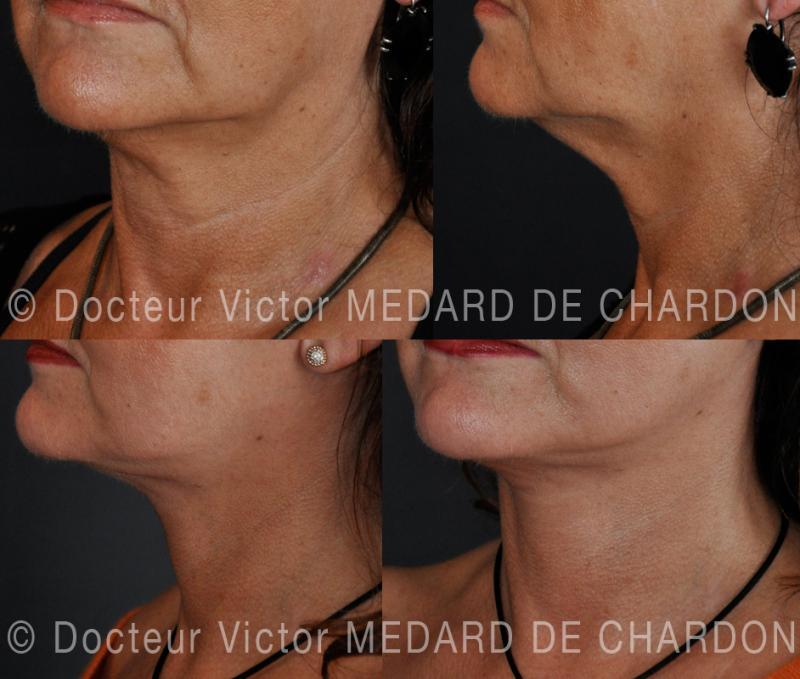 Lifting del viso e del collo: lifting cervico-facciale