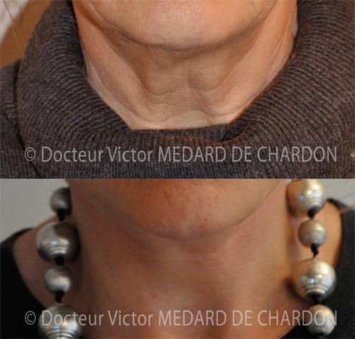 Lifting del viso e del collo