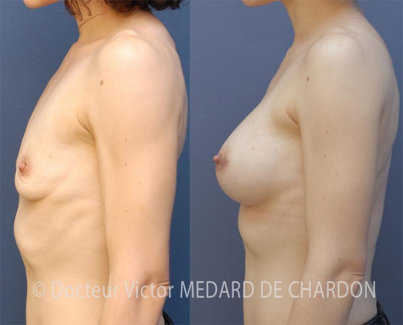 Mastoplastica additiva con protesi mammaria anatomica, profilo alto 370 cc, dual plane II, accesso areolare