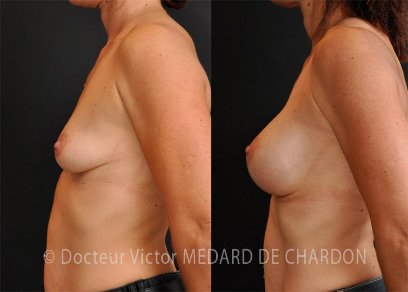 Mastoplastica additiva con protesi mammarie anatomiche, profilo alto, 350 cc, dual plane I, per via ascellare