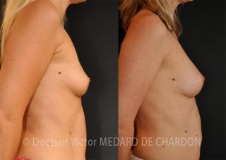 mastoplastica additiva con trasferimento di 340 cc di grasso autologo in ogni seno