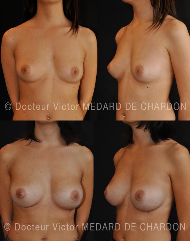 Mastoplastica additiva su asimmetrica con grande seno destro