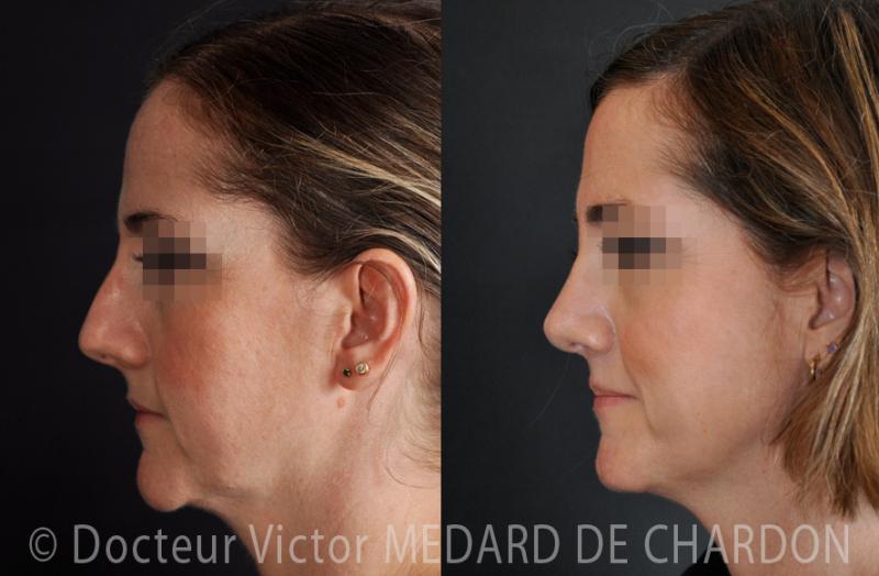 Profiloplasty per mento sporgente della scanalatura sotto il mento, osteocartilaginous gobba