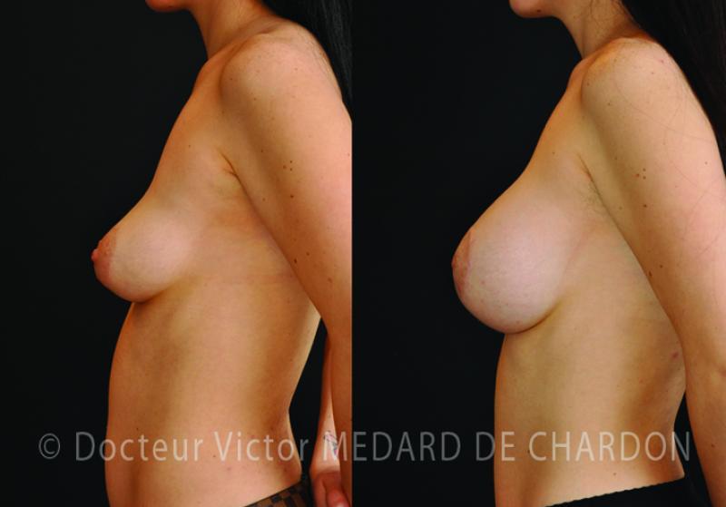 Protesi al seno seno cadente