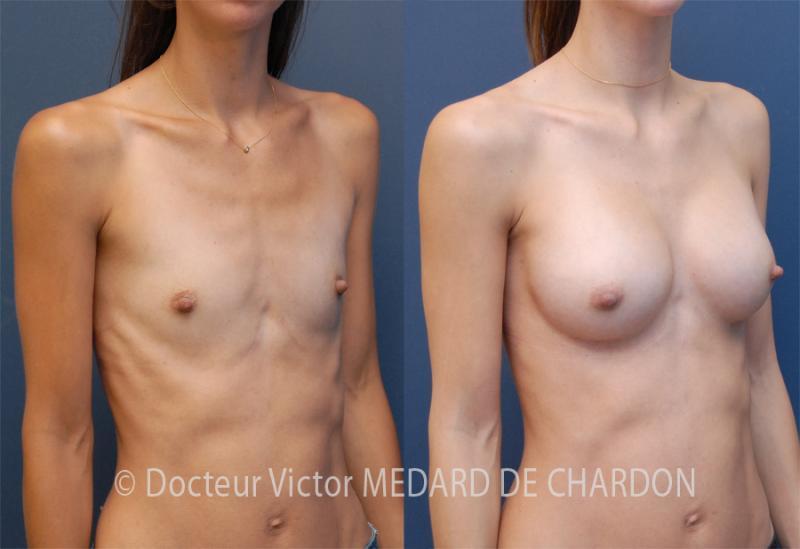 Protesi mammarie anatomiche 340 cc via sottomammaria dual plane I