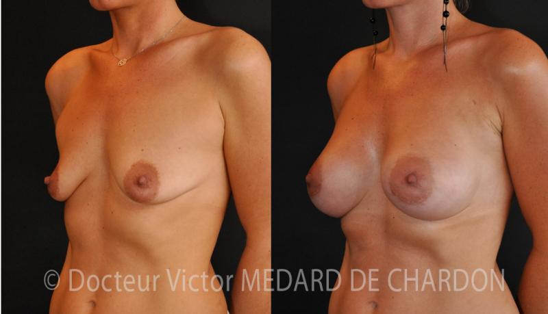 Protesi mammarie anatomiche su ptosi mammaria con accesso areolare