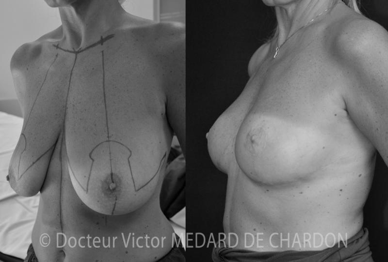 protesi mammarie ascellare