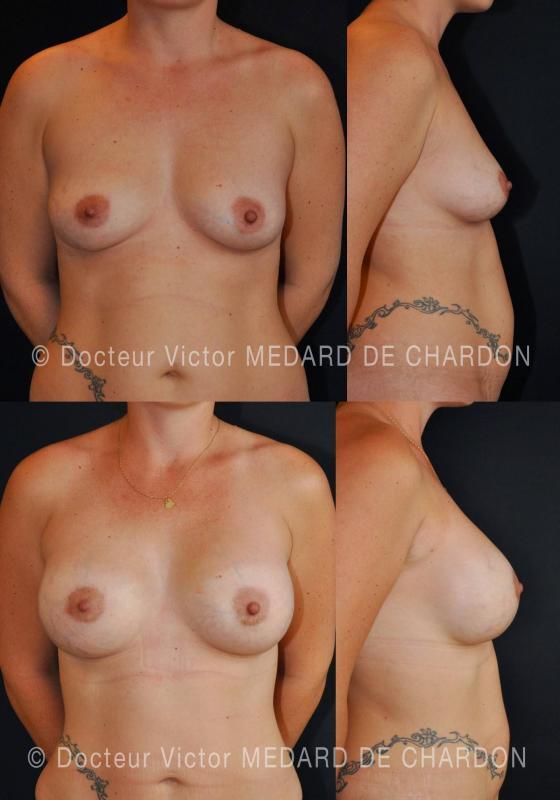 Protesi mammarie in gel di silicone ricoperte in poliuretano