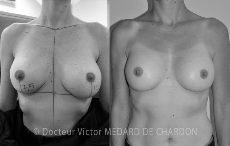 Protesi mammarie PIP unruptured