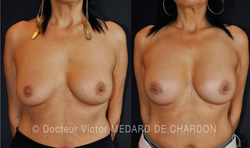 Protesi mammarie riempite con soluzione salina, con protesi destra rotta