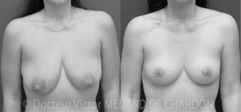 Protesi mammarie rotonde, seno in corso, 300cc, a doppio piano