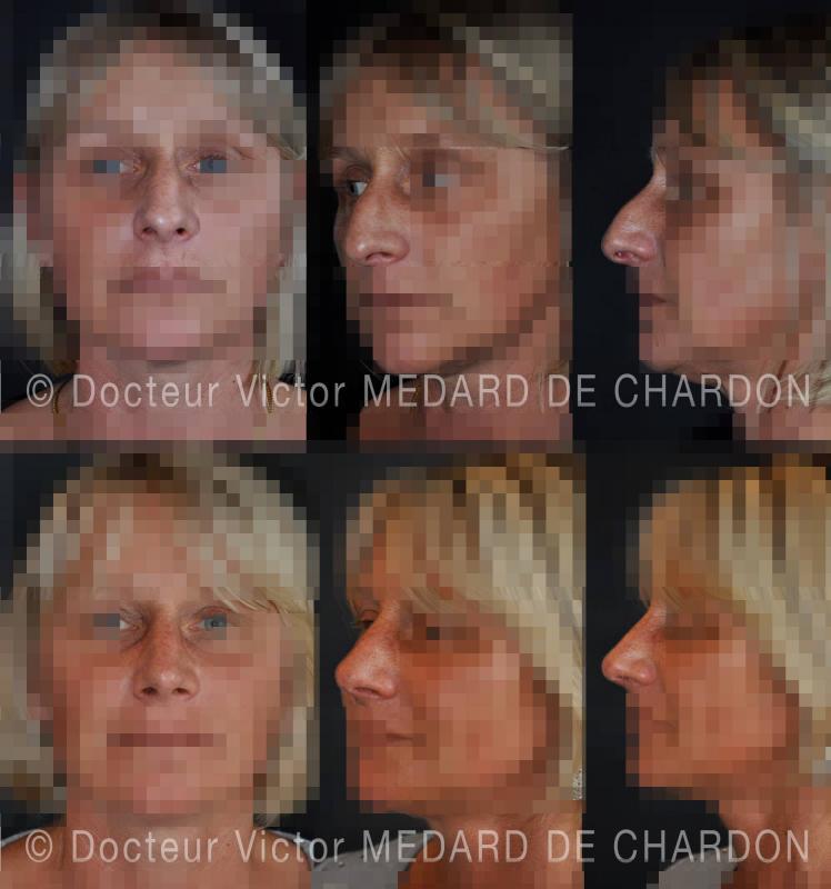Rinoplastica aperta: rimozione della gobba, abbassamento delle ali del naso e risollevamento della punta. Risultato a 6 mesi
