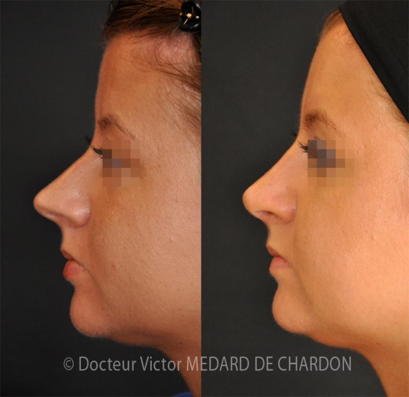Rinoplastica e la fronte lipofilling per per sfuggente fronte e naso e lungo hyperprojeté. I risultati a 6 mesi