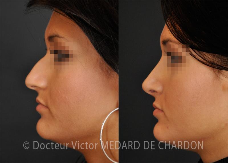 Rinoplastica naso largo punta e bump. Risultato 1 anno