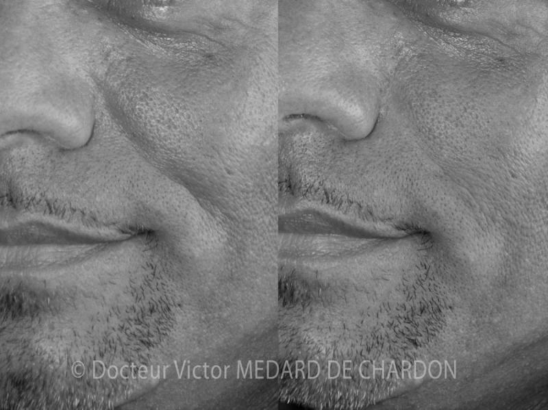 Solchi naso-genieni marcati in un uomo