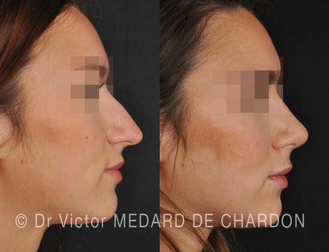 Struttura rinoplastica in una giovane donna per il naso lungo e curvo