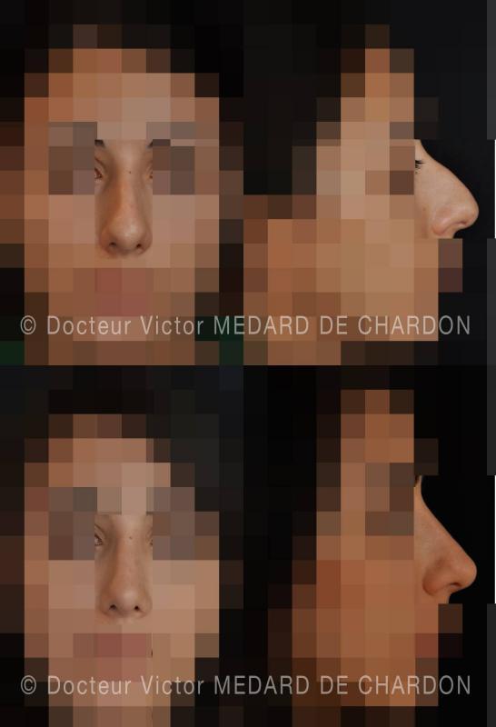 Urto riduzione sul naso, leggero allargamento del dorso, la riduzione punta: Rinoplastica. Risultato 1 anno